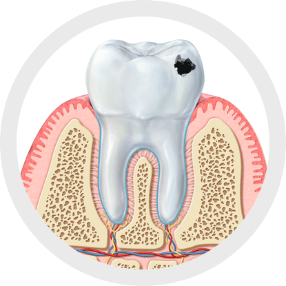 Did you know that 80% of tooth decay begins in the interdental area?