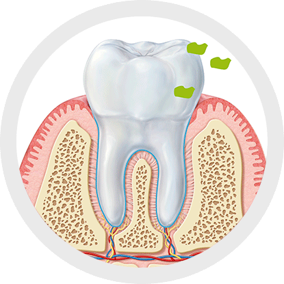 What is the relationship between halitosis and interdental hygiene?