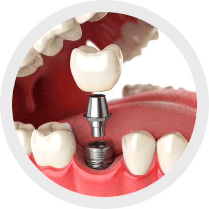 The use of interproximal brushes for cleaning implants