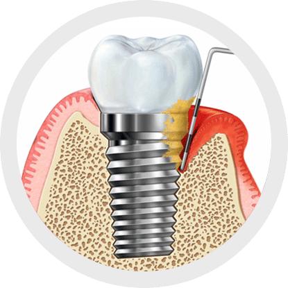 What causes peri-implant diseases?