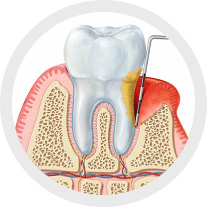 What causes gum disease?